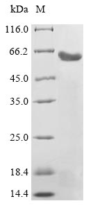 LHB / Luteinizing Hormone Protein - (Tris-Glycine gel) Discontinuous SDS-PAGE (reduced) with 5% enrichment gel and 15% separation gel.