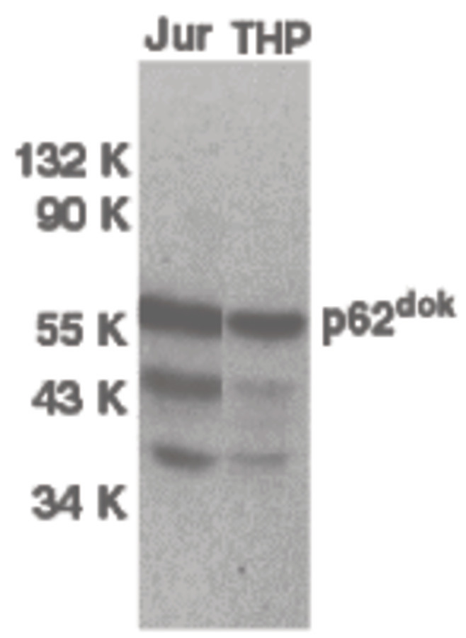 Western blot of DOK1 in Jurkat (Jur) and THP-1 (THP) cell lysates with DOK1 antibody at 1 ug/ml.