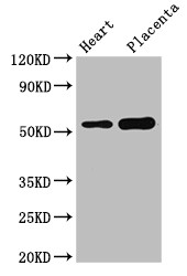 Positive WB detected in:Mouse heart tissue,Human placenta tissue;All lanes:DOK3 antibody at 3?g/ml;Secondary;Goat polyclonal to rabbit IgG at 1/50000 dilution;Predicted band size: 54,24,36,25 KDa;Observed band size: 54 KDa;