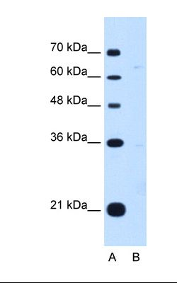 Lane A: Marker. Lane B: HepG2 cell lysate. Antibody concentration: 1.0 ug/ml. Gel concentration: 12%.  This image was taken for the unconjugated form of this product. Other forms have not been tested.
