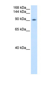 DP97 / DDX54 Antibody - DDX54 antibody ARP36498_P050-NP_076977-DDX54(DEAD (Asp-Glu-Ala-Asp) box polypeptide 54) Antibody Western blot of Transfected 293T cell lysate.  This image was taken for the unconjugated form of this product. Other forms have not been tested.