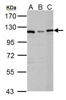 Sample (30 ug of whole cell lysate). A: Raji, B: K562, C: NCI-H929. 7.5% SDS PAGE. DPD antibody diluted at 1:1000.