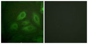 Immunofluorescence analysis of HeLa cells, using DRP-2 (Phospho-Thr514) Antibody. The picture on the right is blocked with the phospho peptide.