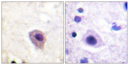Immunohistochemistry analysis of paraffin-embedded human brain, using DRP-2 (Phospho-Thr514) Antibody. The picture on the right is blocked with the phospho peptide.