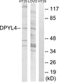 Western blot analysis of lysates from LOVO and HT-29 cells, using DPYSL4 Antibody. The lane on the right is blocked with the synthesized peptide.