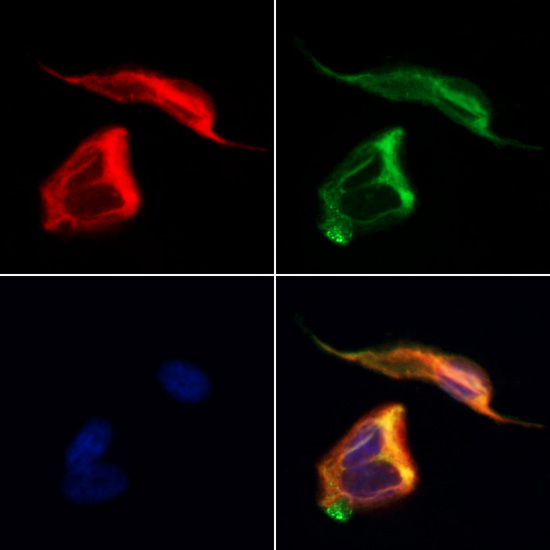 DPYSL5 / CRMP5 Antibody - Staining HeLa cells by IF/ICC. The samples were fixed with PFA and permeabilized in 0.1% Triton X-100, then blocked in 10% serum for 45 min at 25°C. Samples were then incubated with primary Ab(1:200) and mouse anti-beta tubulin Ab(1:200) for 1 hour at 37°C. An AlexaFluor594 conjugated goat anti-rabbit IgG(H+L) Ab(1:200 Red) and an AlexaFluor488 conjugated goat anti-mouse IgG(H+L) Ab(1:600 Green) were used as the secondary antibod