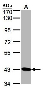 Sample (30g whole cell lysate). A: Hep G2 . 7.5% SDS PAGE. DRAK1 / STK17A antibody diluted at 1:1000