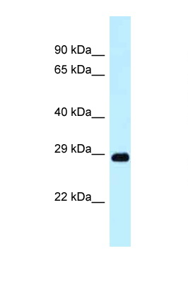 DRAM1 / DRAM antibody LS-C145976 Western blot of Small Intestine lysate. Antibody concentration 1 ug/ml.  This image was taken for the unconjugated form of this product. Other forms have not been tested.