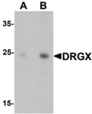 Western blot of DRGX in rat liver tissue lysate with DRGX antibody at (A) 1 and (B) 2 ug/ml.