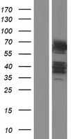 DTX2 Protein - Western validation with an anti-DDK antibody * L: Control HEK293 lysate R: Over-expression lysate