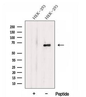 DTX4 Antibody - Western blot analysis of extracts of HEK293 cells using DTX4 antibody. The lane on the left was treated with blocking peptide.