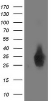 DUPD1 Antibody - HEK293T cells were transfected with the pCMV6-ENTRY control (Left lane) or pCMV6-ENTRY DUPD1 (Right lane) cDNA for 48 hrs and lysed. Equivalent amounts of cell lysates (5 ug per lane) were separated by SDS-PAGE and immunoblotted with anti-DUPD1.