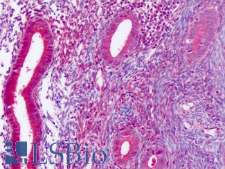 Anti-DUSP23 antibody IHC of human uterus, endometrium. Immunohistochemistry of formalin-fixed, paraffin-embedded tissue after heat-induced antigen retrieval. Antibody LS-A6803 dilution 10-20 ug/ml.