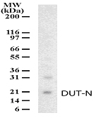 DUT / DUTPase Antibody - Western blot detection of DUT-N in HeLa cell lysate using antibody at a dilution of 1:1000.