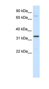 Duxbl Antibody - DUXBL antibody ARP37608_P050-NP_899245-1110051B16RIK Antibody Western blot of SP2/0 cell lysate.  This image was taken for the unconjugated form of this product. Other forms have not been tested.