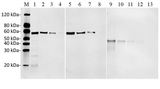 Sensitivity and specificity of MonoRab?? DYKDDDDK Tag Antibody, mAb, Rabbit to DYKDDDDK-tag Fusion Protein by Western blot. Loading: Lane 1: N-terminal DYKDDDDK-tagged fusion protein (25 ng) Lane 2: N-terminal DYKDDDDK-tagged fusion protein (10 ng) Lane 3: N-terminal DYKDDDDK-tagged fusion protein (5 ng) Lane 4: N-terminal DYKDDDDK-tagged fusion protein (1 ng) Lane 5: C-terminal DYKDDDDK-tagged fusion protein (25 ng) Lane 6: C-terminal DYKDDDDK-tagged fusion protein (10 ng) Lane 7: C-terminal DYKDDDDK-tagged fusion protein Lane 8: C-terminal DYKDDDDK-tagged fusion protein (1 ng) Lane 9: Internal positions DYKDDDDK-tagged fusion protein (50 ng) (25 ng) Lane 11: Internal positions DYKDDDDK-tagged fusion protein (10 ng) Lane 12: Internal positions DYKDDDDK-tagged fusion protein (5 ng) Lane 13: Internal positions DYKDDDDK-tagged fusion protein (1 ng) Primary Antibody: MonoRab?? DYKDDDDK Tag Antibody, mAb, Rabbit 0.2 µg/ml Secondary Antibody: Goat anti-Rabbit IgG (H&L) [IRDye800] (Licor,926-32211) (Licor,926-32211)