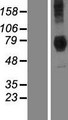 DYM Protein - Western validation with an anti-DDK antibody * L: Control HEK293 lysate R: Over-expression lysate