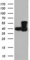HEK293T cells were transfected with the pCMV6-ENTRY control (Left lane) or pCMV6-ENTRY DYNC1LI1 (Right lane) cDNA for 48 hrs and lysed. Equivalent amounts of cell lysates (5 ug per lane) were separated by SDS-PAGE and immunoblotted with anti-DYNC1LI1.