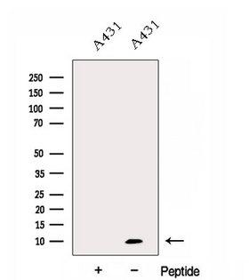 DYNLL2 Antibody - Western blot analysis of extracts of A431 cells using DYNLL2 antibody. The lane on the left was treated with blocking peptide.