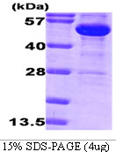G6PD Protein