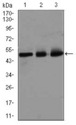 Western blot using E2F1 mouse monoclonal antibody against HeLa (1), SK-N-SH (2), and NIH3T3 (3) cell lysate.