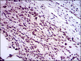 IHC of paraffin-embedded esophageal cancer tissues using E2F1 mouse monoclonal antibody with DAB staining.