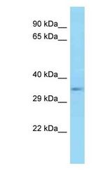 E2F5 antibody Western Blot of Mouse Pancreas . Antibody dilution: 1 ug/ml.  This image was taken for the unconjugated form of this product. Other forms have not been tested.