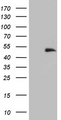 HEK293T cells were transfected with the pCMV6-ENTRY control. (Left lane) or pCMV6-ENTRY E2F5. (Right lane) cDNA for 48 hrs and lysed. Equivalent amounts of cell lysates. (5 ug per lane) were separated by SDS-PAGE and immunoblotted with anti-E2F5. (1:2000)