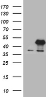 E2F5 Antibody - HEK293T cells were transfected with the pCMV6-ENTRY control. (Left lane) or pCMV6-ENTRY E2F5. (Right lane) cDNA for 48 hrs and lysed. Equivalent amounts of cell lysates. (5 ug per lane) were separated by SDS-PAGE and immunoblotted with anti-E2F5. (1:2000)