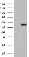 E2F5 Antibody - HEK293T cells were transfected with the pCMV6-ENTRY control. (Left lane) or pCMV6-ENTRY E2F5. (Right lane) cDNA for 48 hrs and lysed