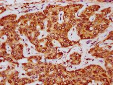 E2F5 Antibody - Immunohistochemistry Dilution at 1:200 and staining in paraffin-embedded human liver cancer performed on a Leica BondTM system. After dewaxing and hydration, antigen retrieval was mediated by high pressure in a citrate buffer (pH 6.0). Section was blocked with 10% normal Goat serum 30min at RT. Then primary antibody (1% BSA) was incubated at 4°C overnight. The primary is detected by a biotinylated Secondary antibody and visualized using an HRP conjugated SP system.