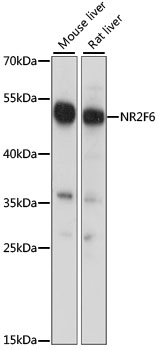 EAR2 / NR2F6 Antibody - Western blot analysis of extracts of various cell lines, using NR2F6 antibody at 1:1000 dilution. The secondary antibody used was an HRP Goat Anti-Rabbit IgG (H+L) at 1:10000 dilution. Lysates were loaded 25ug per lane and 3% nonfat dry milk in TBST was used for blocking. An ECL Kit was used for detection and the exposure time was 1S.