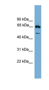 EBF4 Antibody - EBF4 antibody Western blot of SP2/0 cell lysate. This image was taken for the unconjugated form of this product. Other forms have not been tested.