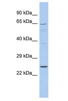 EBS / NAT9 Antibody - EBS / NAT9 antibody Western Blot of Fetal Spleen. Antibody dilution: 1 ug/ml.  This image was taken for the unconjugated form of this product. Other forms have not been tested.