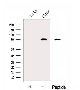 ECD Antibody - Western blot analysis of extracts of HeLa cells using ECD antibody. The lane on the left was treated with blocking peptide.