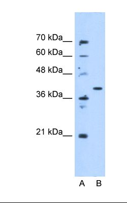 Lane A: Marker. Lane B: HepG2 cell lysate. Antibody concentration: 5.0 ug/ml. Gel concentration: 12%.  This image was taken for the unconjugated form of this product. Other forms have not been tested.