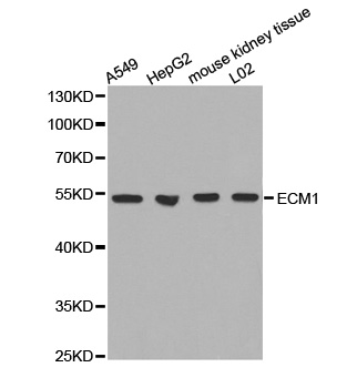 Western blot analysis of extracts of various cell lines, using ECM1 antibody. The secondary antibody used was an HRP Goat Anti-Rabbit IgG (H+L) at 1:10000 dilution. Lysates were loaded 25ug per lane and 3% nonfat dry milk in TBST was used for blocking.
