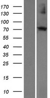ECM2 Protein - Western validation with an anti-DDK antibody * L: Control HEK293 lysate R: Over-expression lysate