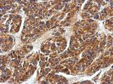 Anti-EDAR antibody used in IHC (Formalin-fixed paraffin-embedded sections).