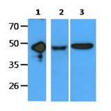 EDAR Antibody - The recombinant protein(50ng) and cell lysates(40ug) were resolved by SDS-PAGE, transferred to PVDF membrane and probed with anti-human EDAR antibody (1:1000). Proteins were visualized using a goat anti-mouse secondary antibody conjugated to HRP and an ECL detection system. Lane 1 : Recombinant protein Lane 2 : A549 cell lysate Lane 3 : Ramos cell lysate