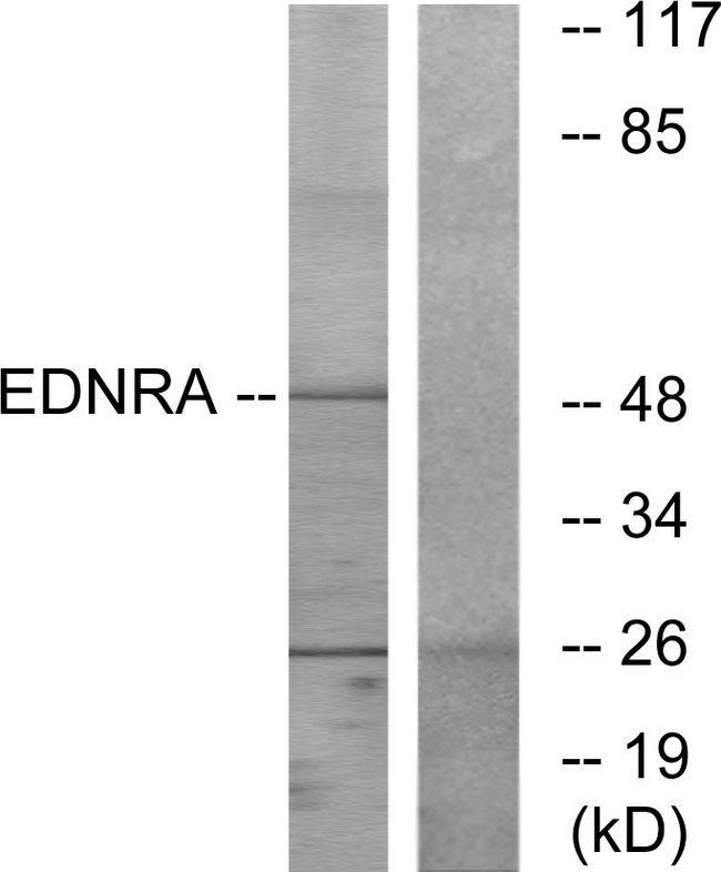 EDNRA / Endothelin A Receptor Antibody - Western blot analysis of lysates from HepG2 cells, using EDNRA Antibody. The lane on the right is blocked with the synthesized peptide.