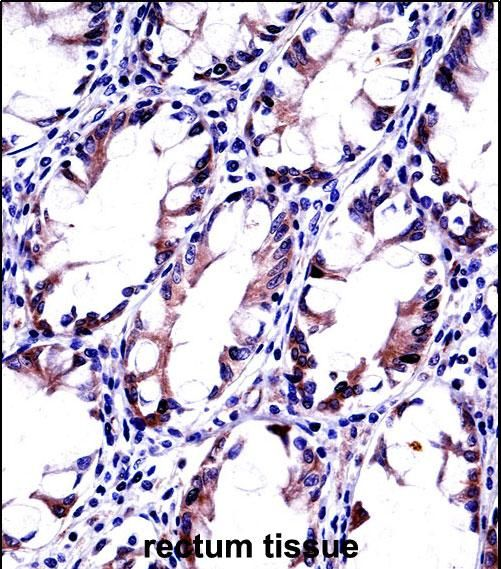 EEA1 Antibody - EEA1 Antibody (Center) immunohistochemistry analysis in formalin fixed and paraffin embedded human rectum tissue followed by peroxidase conjugation of the secondary antibody and DAB staining. This demonstrates the use of EEA1 Antibody (Center) for immunohistochemistry.