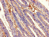 Immunohistochemistry image of paraffin-embedded human colon cancer at a dilution of 1:100