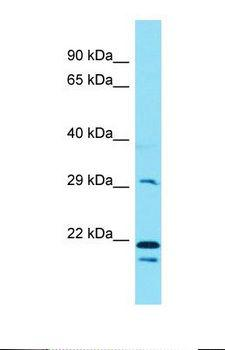 EEF2KMT / FAM86A Antibody - Western blot of MCF7. FAM86A antibody dilution 1.0 ug/ml.  This image was taken for the unconjugated form of this product. Other forms have not been tested.