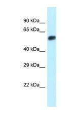 Eepd1 antibody Western blot of Small Intestine lysate. Antibody concentration 1 ug/ml.  This image was taken for the unconjugated form of this product. Other forms have not been tested.