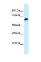 EEPD1 Antibody - Eepd1 antibody Western blot of Small Intestine lysate. Antibody concentration 1 ug/ml.  This image was taken for the unconjugated form of this product. Other forms have not been tested.