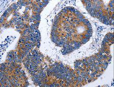 EF1G / EEF1G Antibody - Immunohistochemistry of paraffin-embedded Human colon cancer using EEF1G Polyclonal Antibody at dilution of 1:50.
