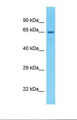 Western blot of Human large intestine Tumor. EFHC1 antibody dilution 1.0 ug/ml.  This image was taken for the unconjugated form of this product. Other forms have not been tested.