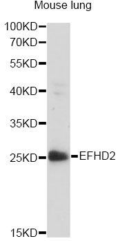 EFHD2 Antibody - Western blot analysis of extracts of mouse lung, using EFHD2 antibody at 1:1000 dilution. The secondary antibody used was an HRP Goat Anti-Rabbit IgG (H+L) at 1:10000 dilution. Lysates were loaded 25ug per lane and 3% nonfat dry milk in TBST was used for blocking. An ECL Kit was used for detection and the exposure time was 90s.