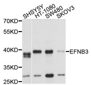 EFNB3 / Ephrin B3 Antibody - Western blot analysis of extracts of various cells.